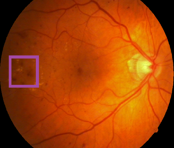 Image of a retina containing a retinal lesion associated with diabetic retinopathy