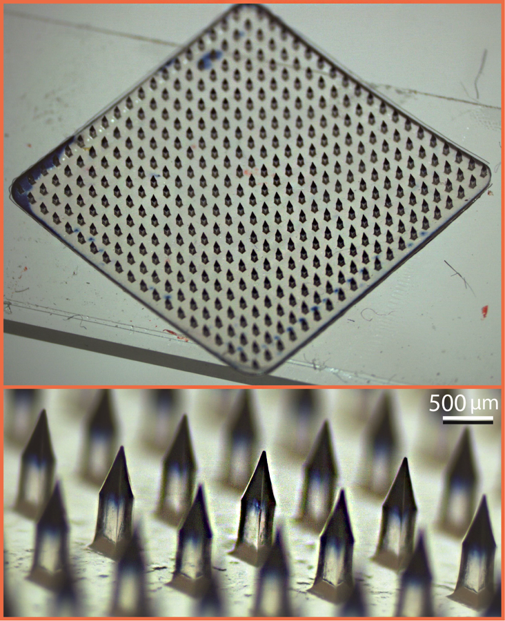 A microneedle array