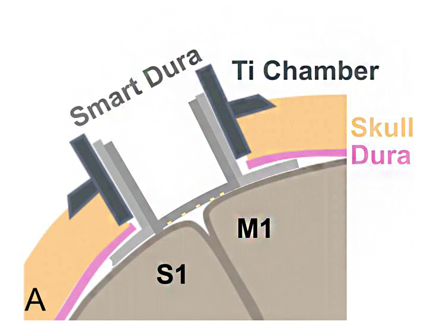 Graphic showing the smart dura, TI chamber, and skull dura