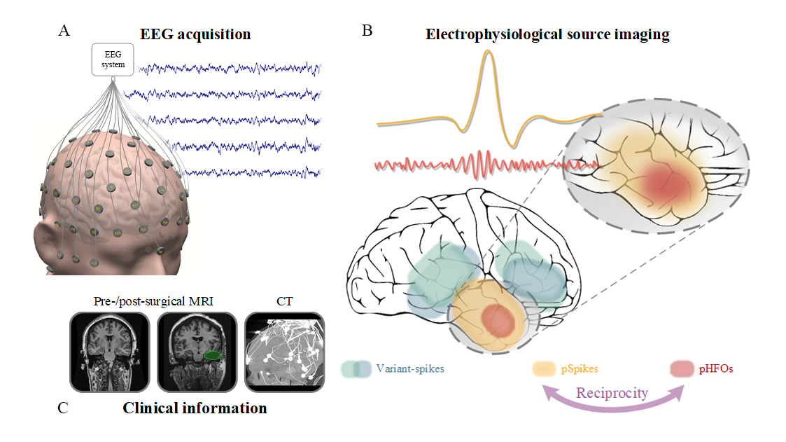 Technical graphic showing EEG acquisition and electrophysical source imaging